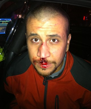 George Zimmerman clearly is the victim of a violent attack that left his nose broken