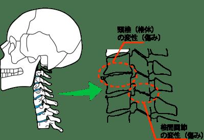 頚椎症・頸椎椎間関節症