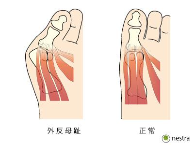 外反母趾筋腱