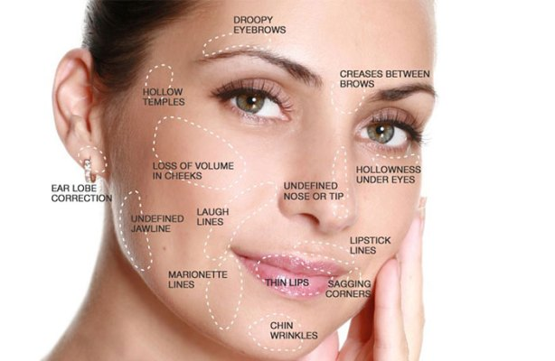 fillers-face-map