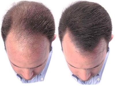 La méthode nationale contre la chute des cheveux