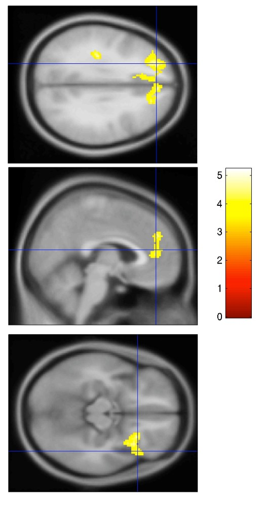 Teaser from my upcoming submission - Changes of cognitive-affective neural processing following active-controlled mindfulness intervention