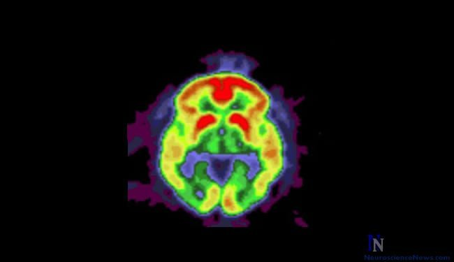 alzheimers-disease-brain-scan