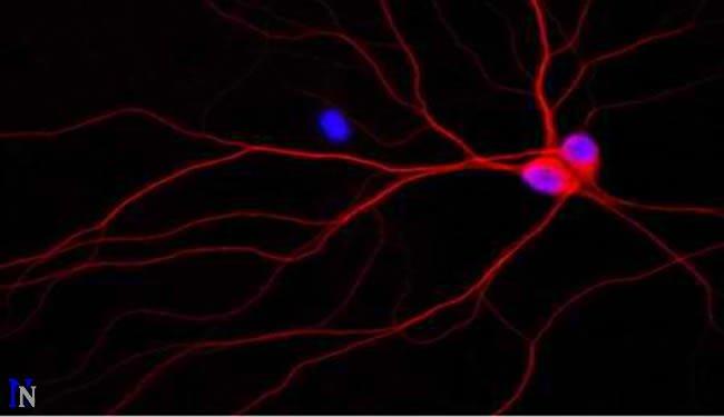 alzheimers-disease-rat-neurons