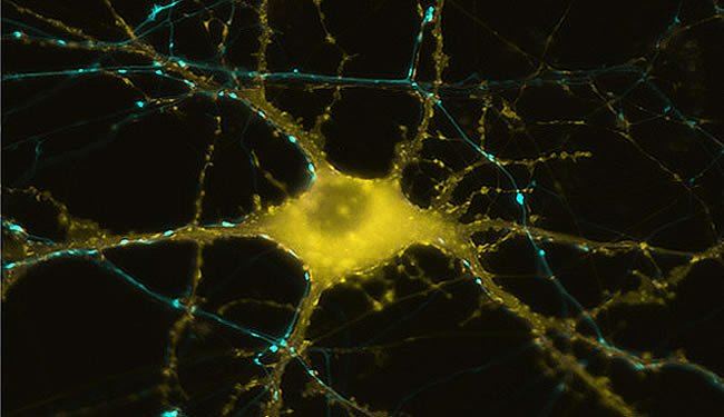 human-neuron-huntingtons-disease