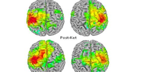 ketamine-brain-scans-meg