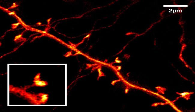 neurons-mouse-brain-visualized