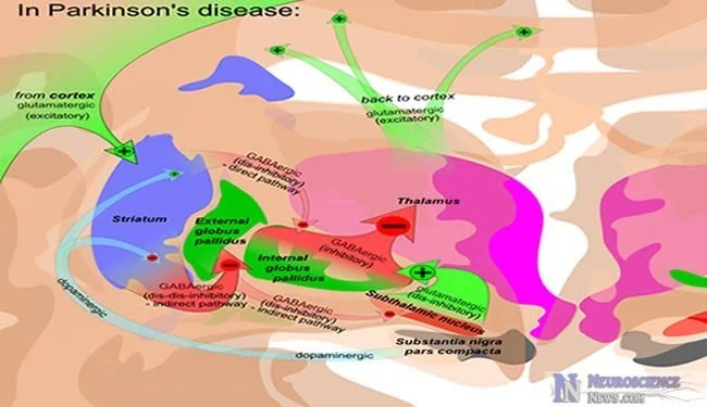 Oxidative Stress  Defective Nucleoli Likely A Cause Of