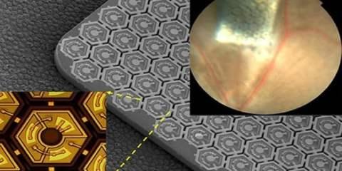 retinal-prosthesis-stanford