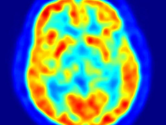 The image shows a PET scan of a brain affected by parkinson's disease.