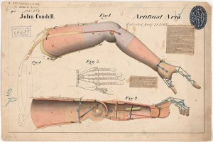 This is an old schematic of an artificial arm and hand.