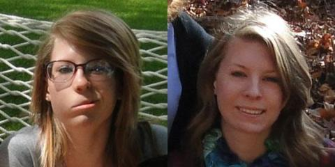 The image shows Bell's palsy patient Audrey Rex before and after treatment.