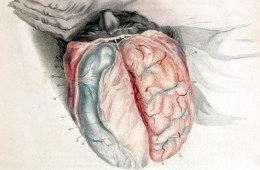 This illustration shows an open skull exposing the brain of a sleeping man.
