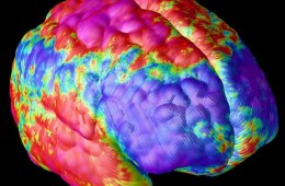 The image shows the areas of the brain affected by schizophrenia.