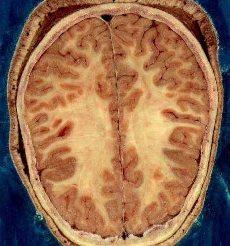 This is a horizontal slice of the head of an adult female.