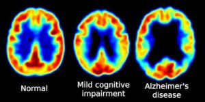 The image shows PET brain scans of a normal brain, one affected by mild cognitive impairment and one with alzheimer's.