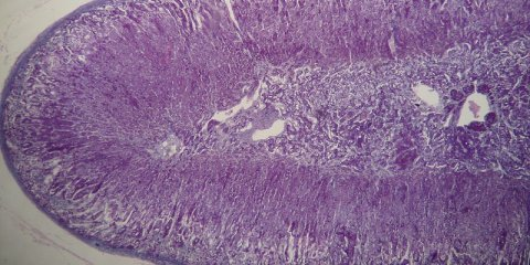 This image shows the adrenal cortex.