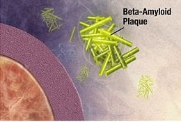 This is an illustration of amyloid beta plaque.