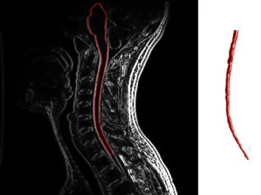 The image is a cervical spine MRI with enhancement showing multiple sclerosis.