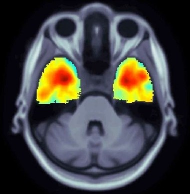 the image shows an MRI scan of an Alzheimer's patient who carries the TERM2 genetic mutation.