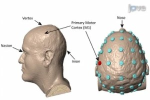 The image shows the areas of the brain targeted.