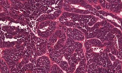 The image is a histology specimen (H&E stain) of Medulloepithelioma (embryonal tumor with multilayered rosettes - ETMR).