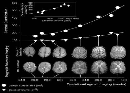 This MRI scan maps cerebral cortex development.