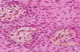 BIG_Papillary_craniopharyngioma-stained