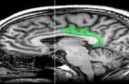 MRI_posterior_cingulate-pain_BIG