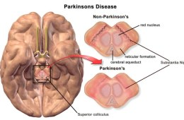 This image shows the differences in superior colliculus between Parkinson's patients and those without the disease.
