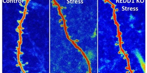 The image shows three different images of synaptic connections. The caption best describes the image.
