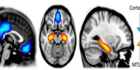 The image shows a scan which details brain activity under psilocybin.