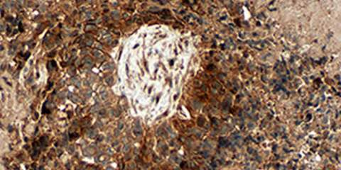 The image shows a glioblastoma brain tumor under a microscope.