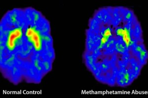 The image shows two brain scans. One is of a normal brain, the other is of a brain of a meth user.
