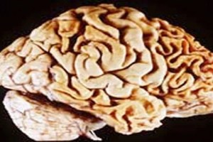 The image shows a human brain showing frontotemporal lobar degeneration causing frontotemporal dementia.