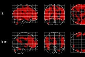Four different images of brain scans are shown.