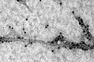 The image shows the molecular chaperone binding to amyloid beta.