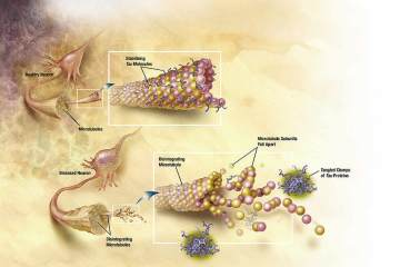 This is a diagram of how microtubules desintegrate with Alzheimer's disease.