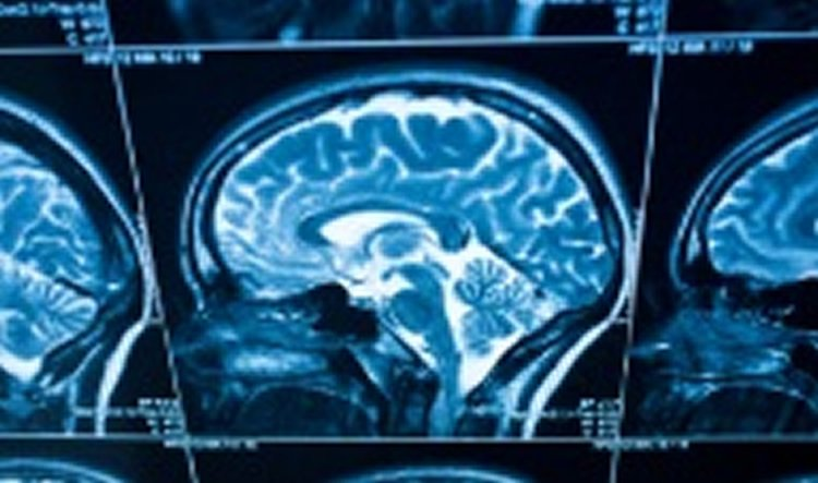 People with Type 1 Diabetes Show Signs of Accelerated Brain Aging Related to Cognitive Problems - Neuroscience News