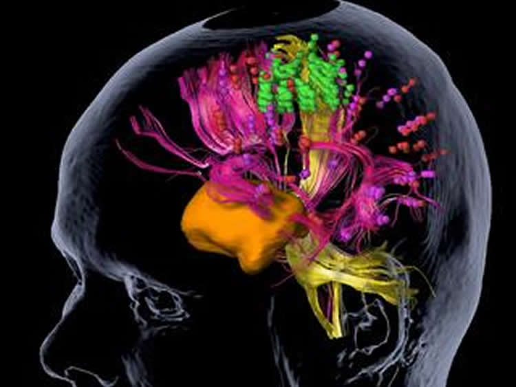 This shows the nTMS mapping of a brain tumor.
