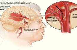 This is an illustration of a blood clot causing a stroke.