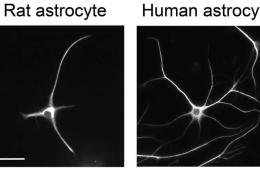 Image shows human and rat astrocytes.