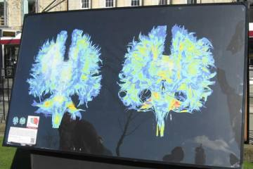 Image shows MRI scans from a concussion patient.