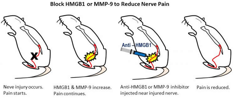researchers identify new targets for reducing nerve pain