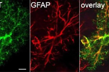 Image shows astrocytes.
