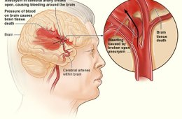 Image shows how a hemorrhagic stroke can occur in the brain.