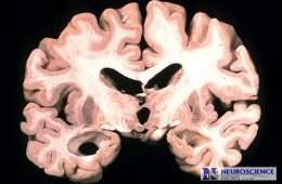 Image of a brain slice of an Alzheimer's patient.