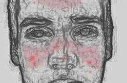 Illustration shows a person with rosacea.