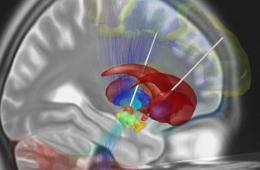 Image shows a brain scan with the electrodes from the DBS showing.