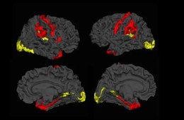 Image shows brain scans with the cortical thickness higlighted in red and yellow.
